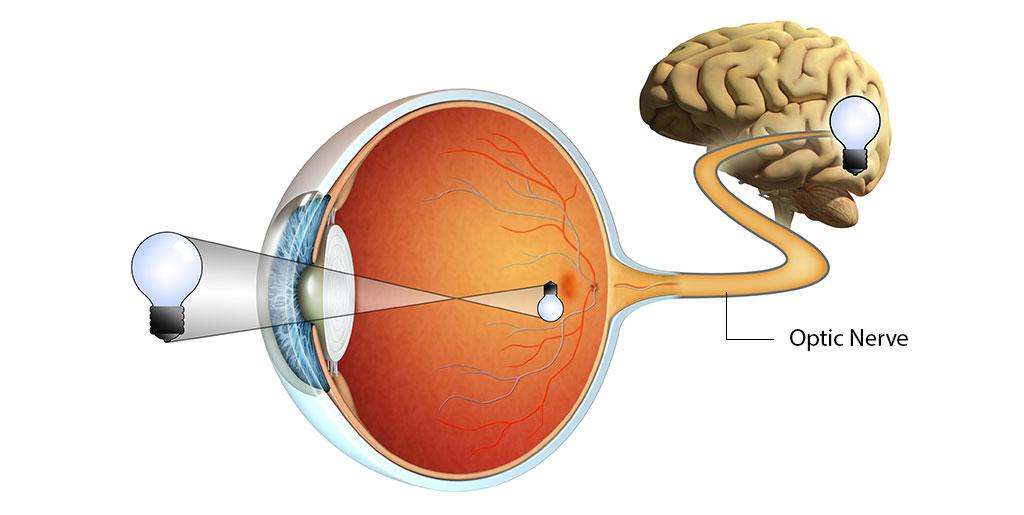 Understanding the Optic Nerve