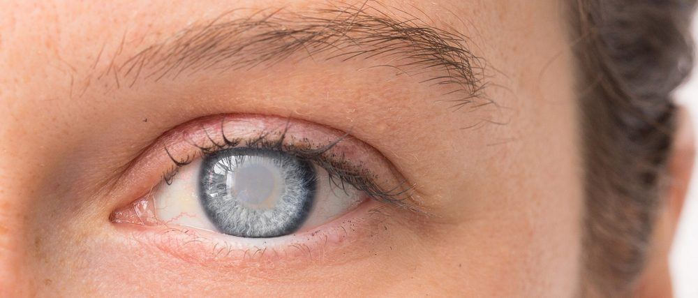 When is the Right Time To Have Cataract Surgery?