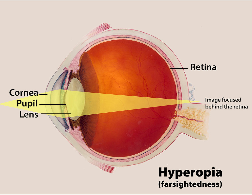 What is Farsightedness and How is it Corrected?