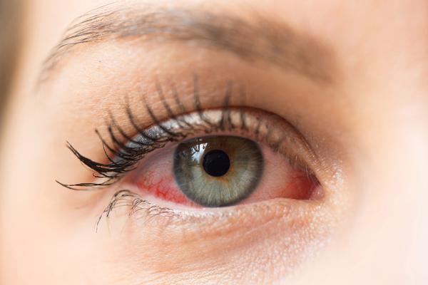 Understand Signs & Symptoms Blepharitis?